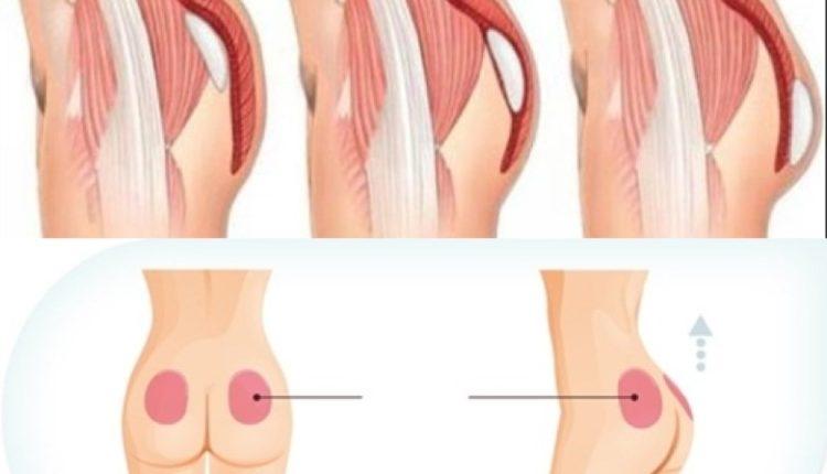 Nâng mông cũng là phương pháp được nhiều chị em sử dụng
