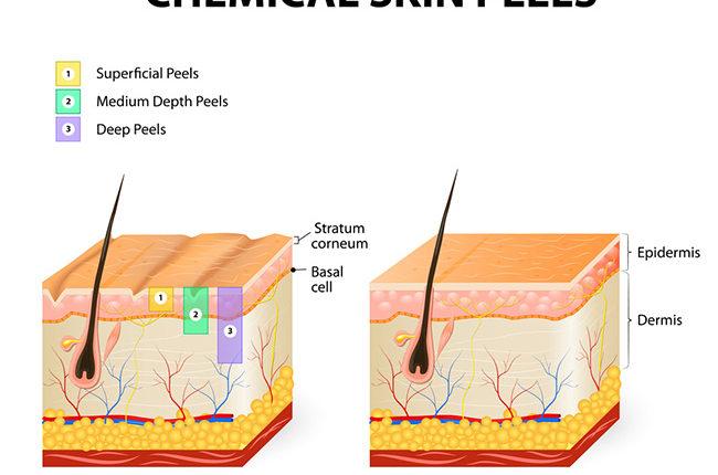 Các phương pháo thay da sinh học