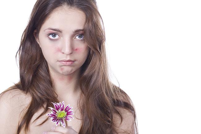 Tác dụng phụ của thay da sinh học là da có thể bị ửng đỏ