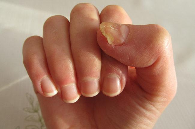 Móng tay bị ố vàng