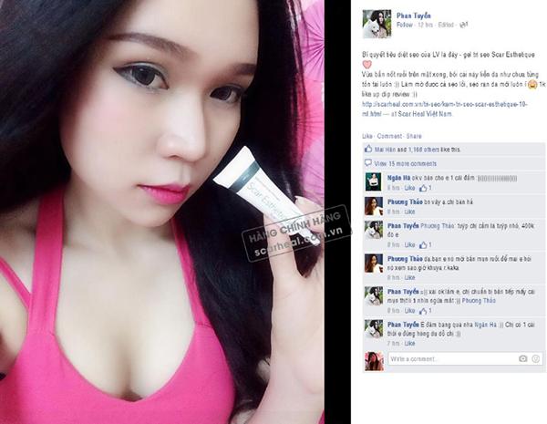 Review của Hotgirl LV Babi sau khi sử dụng kem trị sẹo Scar Esthetique