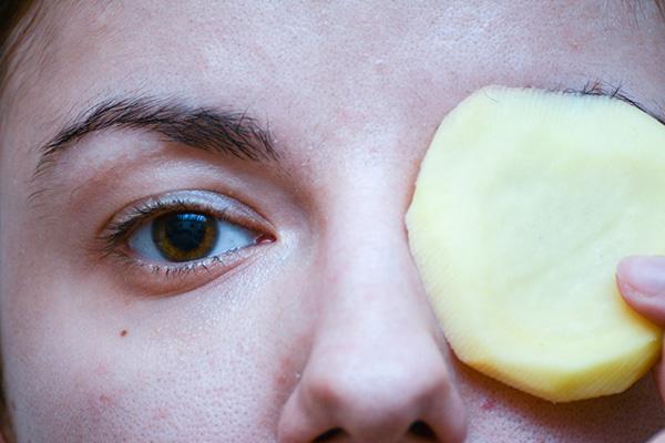 Đắp khoai tây lên mặt giúp loại bỏ các vết thâm, cung cấp dưỡng chất cho da