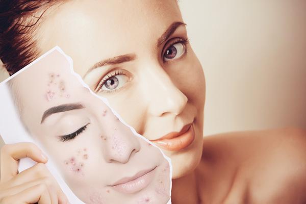 Áp dụng các cách trị thâm mụn để có làn da khỏe đẹp nhé
