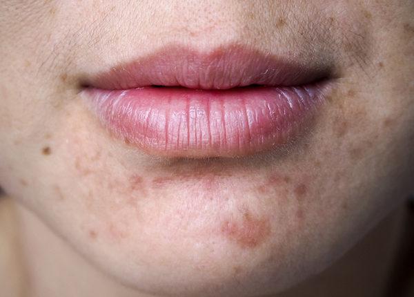 Vết thâm do mụn ăn sâu vào da