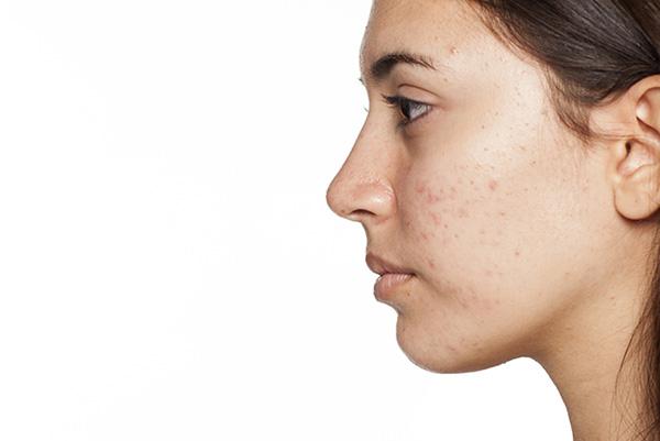 Chăm sóc da mụn đúng cách là điều cực kỳ cần thiết để hạn chế vết thâm