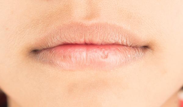 Để có làn môi mềm mịn, bạn nên tiến hành tẩy da chết cho môi