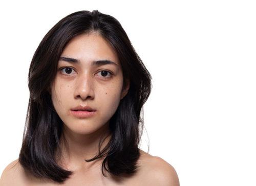 3 cách trị tàn nhang sau sinh hiệu quả ngay tại nhà bằng nguyên liệu tự nhiên