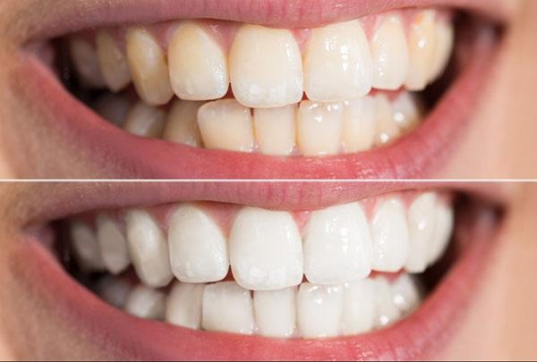 Sau 4 lần sử dụng, răng đã trắng sáng hơn nhiều