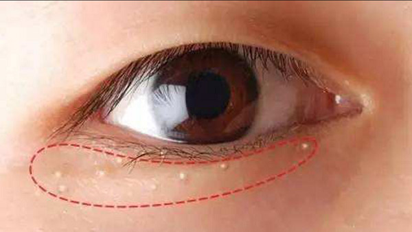 Quanh mắt là nơi dễ xuất hiện nhiều nốt mụn nhất