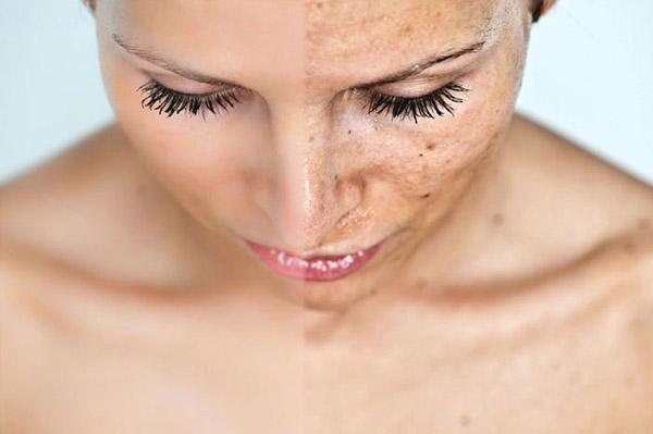 Chọn lựa đúng kem chống nắng vô cùng quan trọng cho làn da