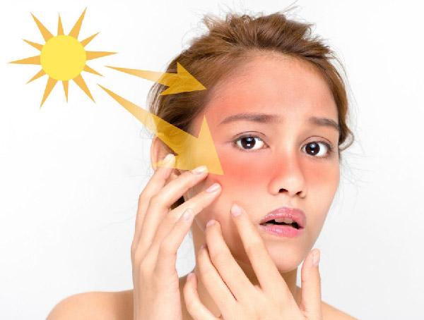 Giúp da tránh bị cháy nắng dưới ánh mặt trời
