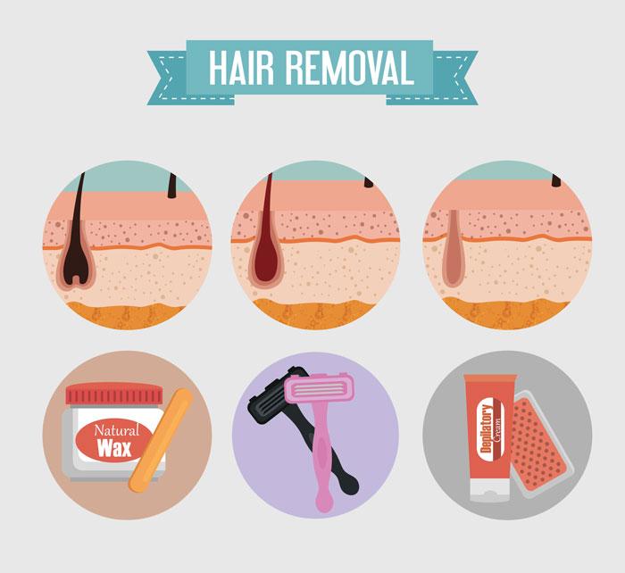 Phương pháp triệt lông phổ biến